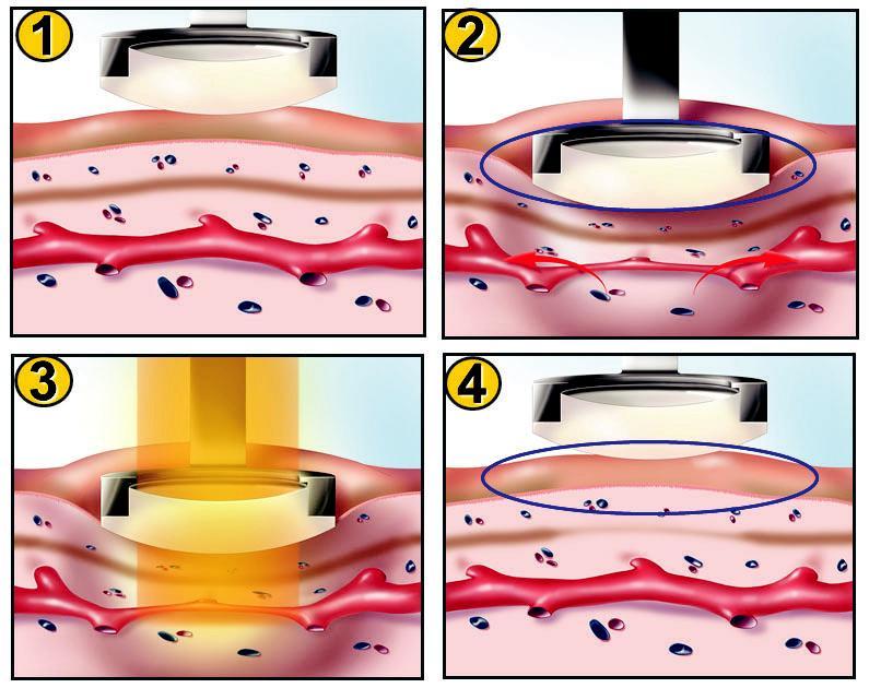 вред лазерного отбеливания зубов