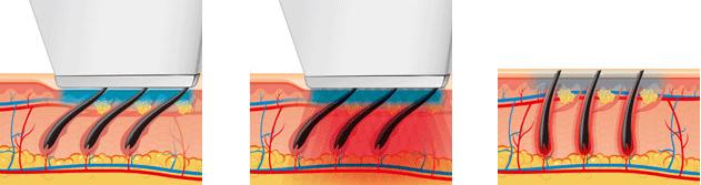 Теория лазерной эпиляции волос