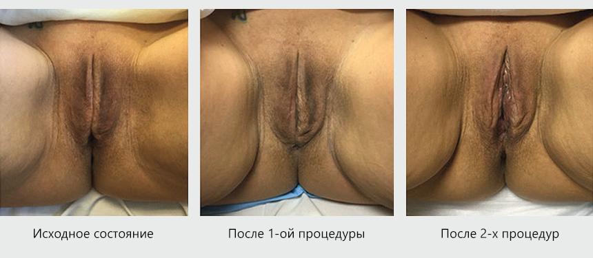 18+ Внешнее лечение входного отверстия и половых губ на лазере CO2RE Intima